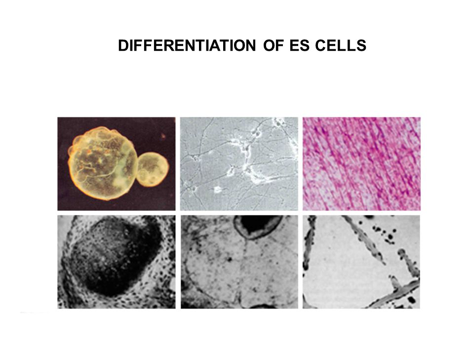 DIFFERENTIATION OF ES CELLS