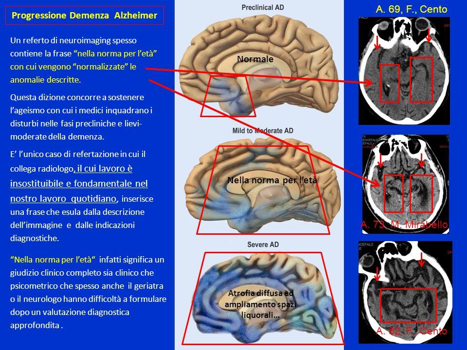 Progressione Demenza Alzheimer
