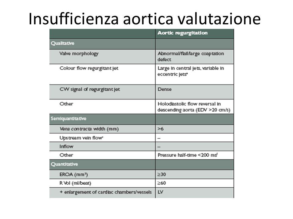 Insufficienza aortica valutazione