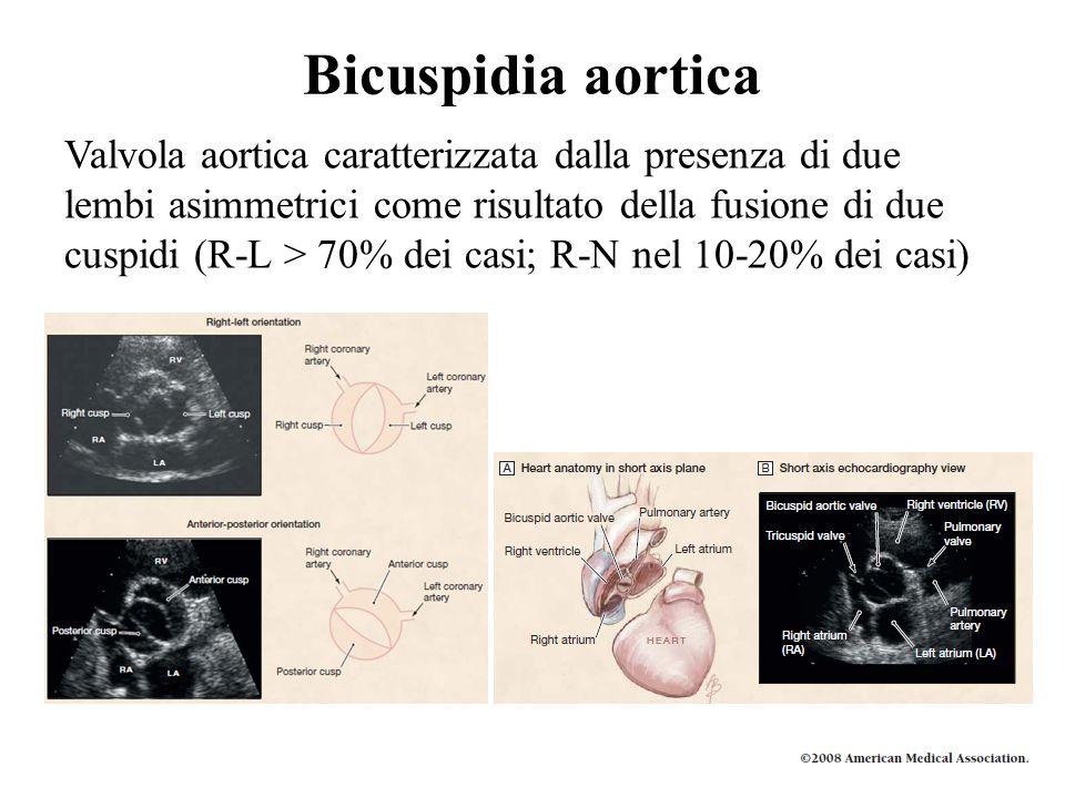 Bicuspidia aortica