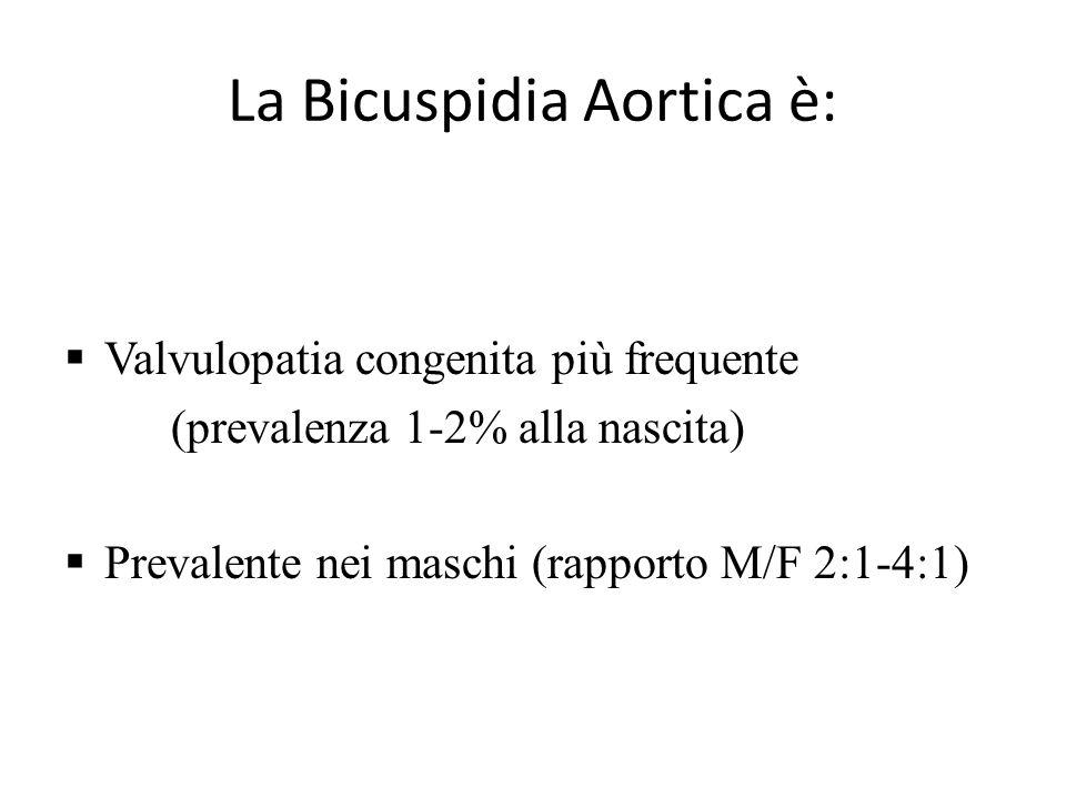 La Bicuspidia Aortica è: