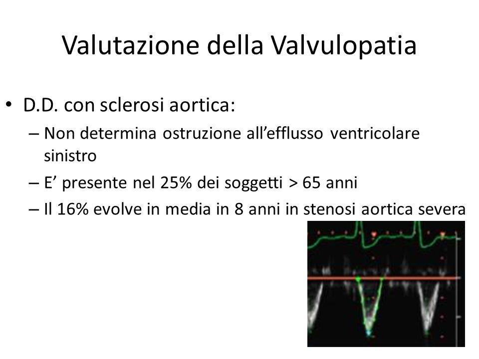 Valutazione della Valvulopatia