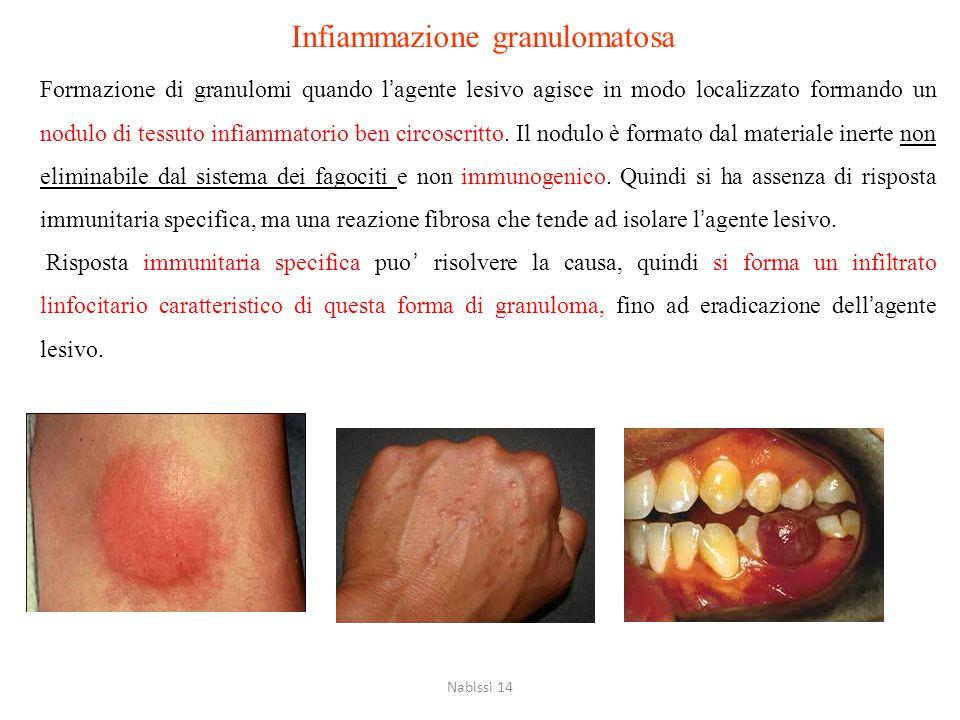 Infiammazione granulomatosa