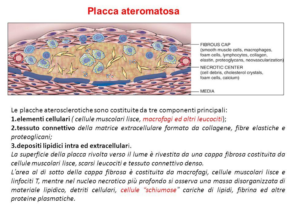 Placca ateromatosa Le placche aterosclerotiche sono costituite da tre componenti principali: