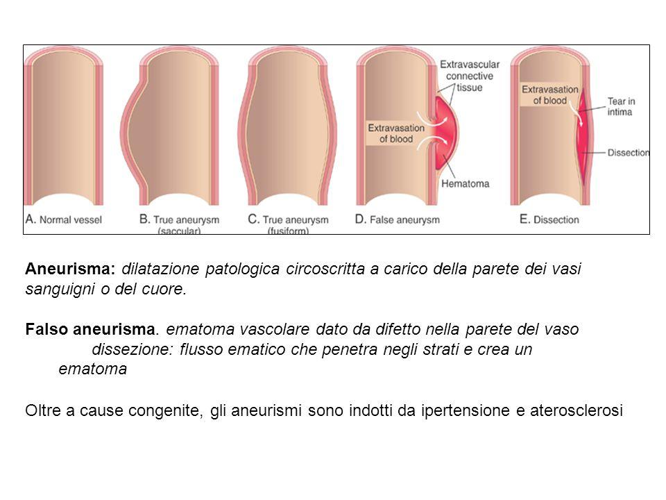 Aneurisma: dilatazione patologica circoscritta a carico della parete dei vasi sanguigni o del cuore.