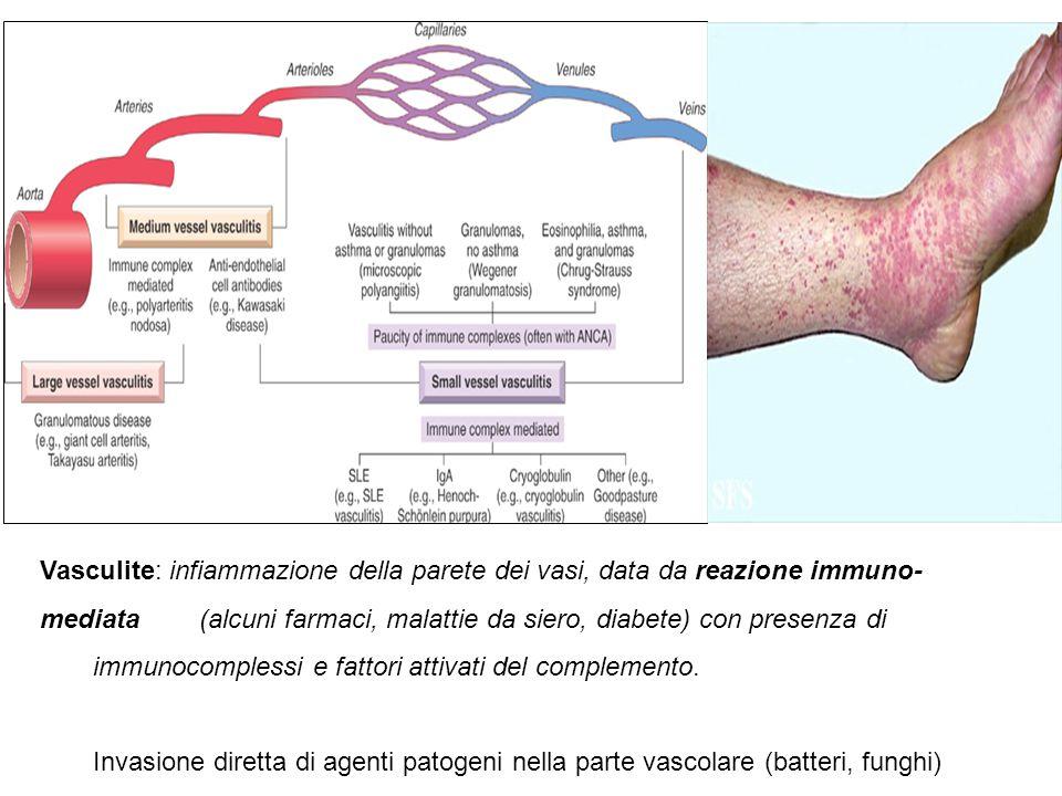 Vasculite: infiammazione della parete dei vasi, data da reazione immuno-mediata (alcuni farmaci, malattie da siero, diabete) con presenza di immunocomplessi e fattori attivati del complemento.