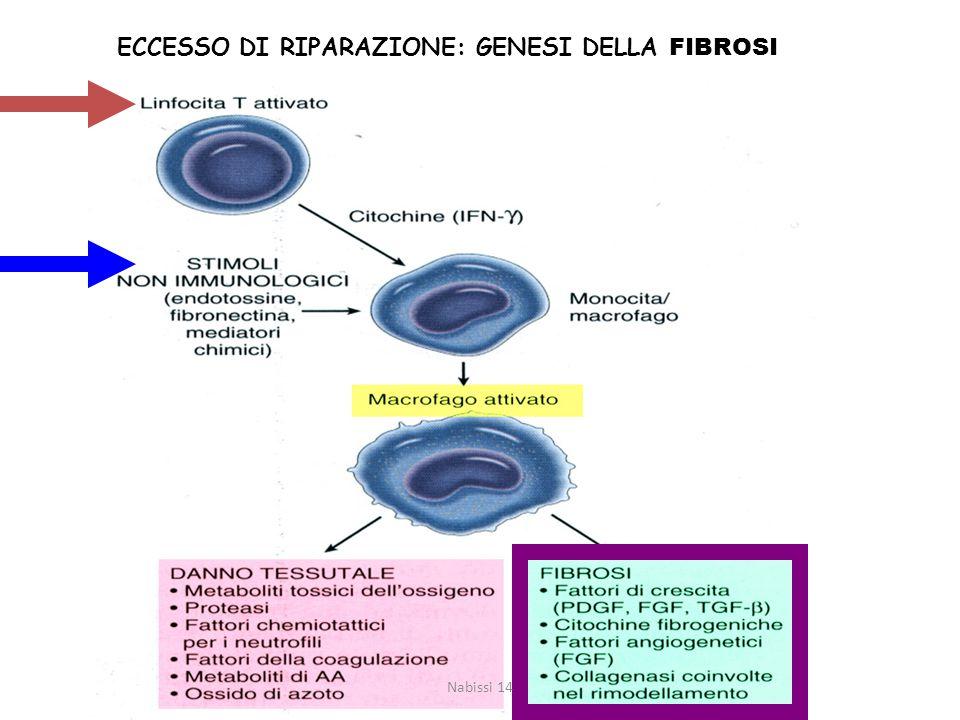ECCESSO DI RIPARAZIONE: GENESI DELLA FIBROSI