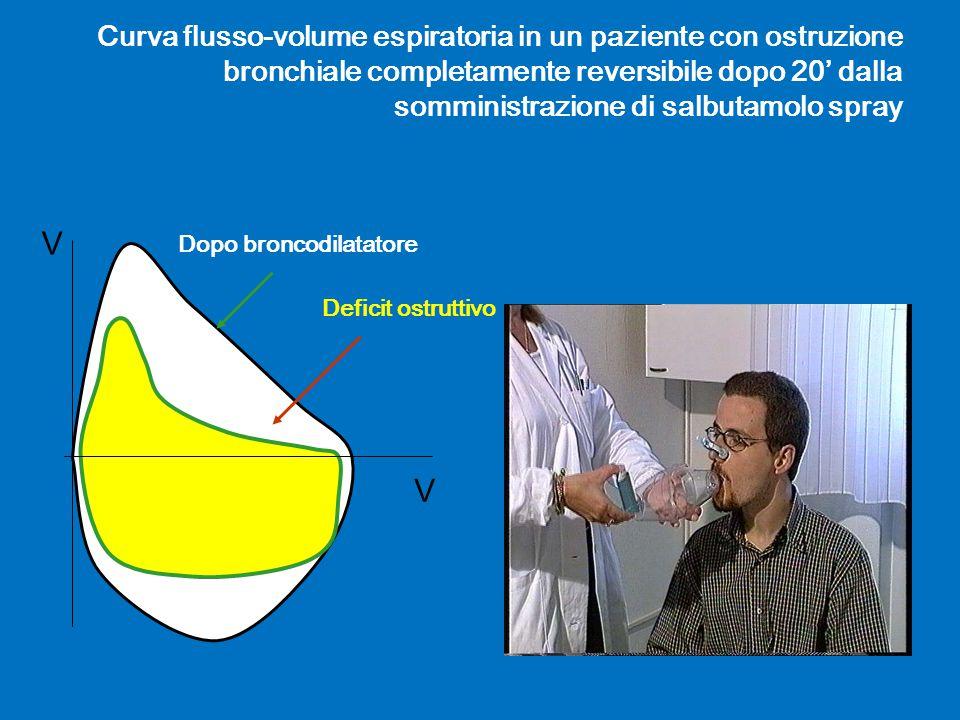 Curva flusso-volume espiratoria in un paziente con ostruzione bronchiale completamente reversibile dopo 20' dalla somministrazione di salbutamolo spray