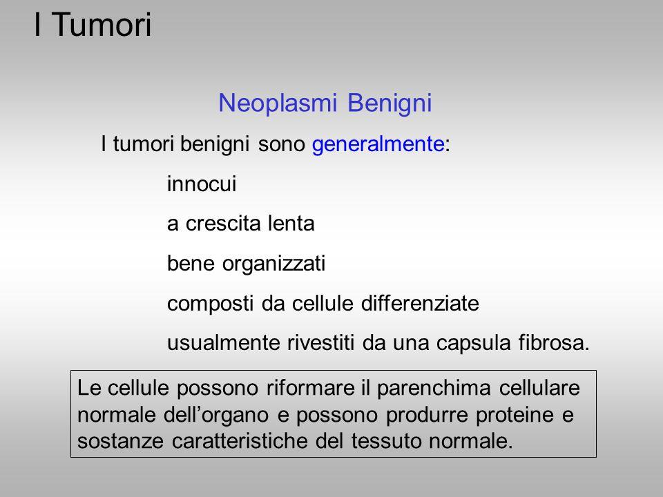 I Tumori Neoplasmi Benigni I tumori benigni sono generalmente: innocui