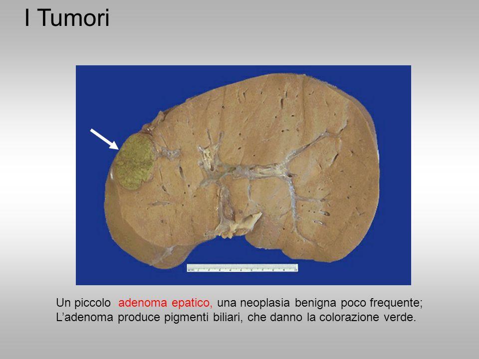 I Tumori Un piccolo adenoma epatico, una neoplasia benigna poco frequente; L'adenoma produce pigmenti biliari, che danno la colorazione verde.