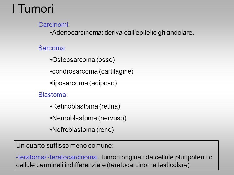 I Tumori Carcinomi: Adenocarcinoma: deriva dall'epitelio ghiandolare.