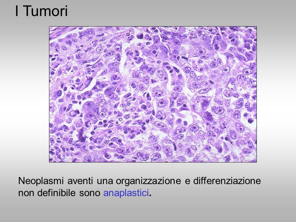 I Tumori Neoplasmi aventi una organizzazione e differenziazione non definibile sono anaplastici.