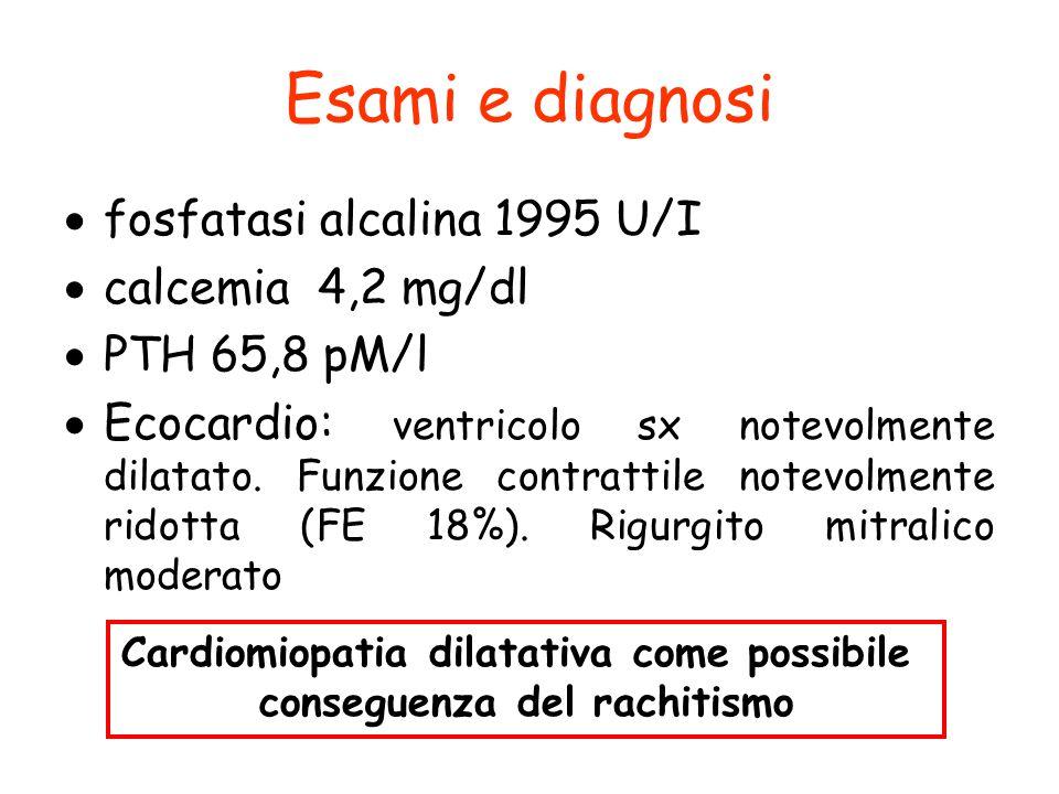 Cardiomiopatia dilatativa come possibile conseguenza del rachitismo