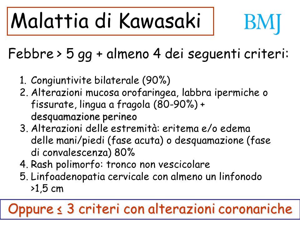 Oppure ≤ 3 criteri con alterazioni coronariche