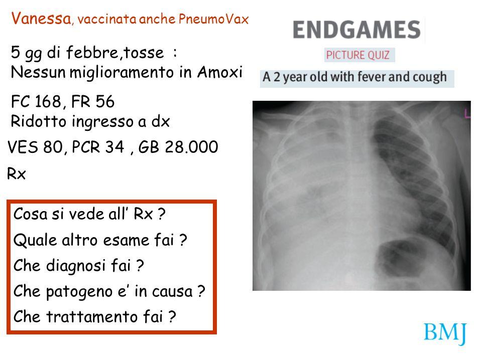 Vanessa, vaccinata anche PneumoVax