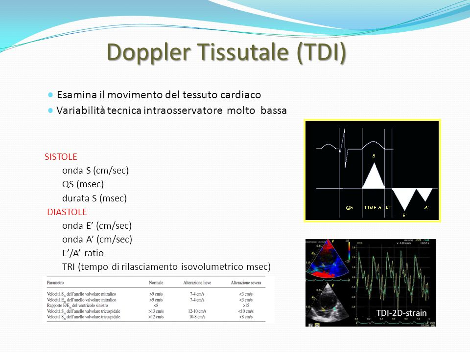 Doppler Tissutale (TDI)