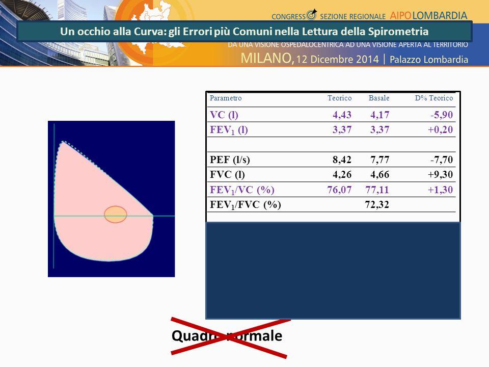 Un occhio alla Curva: gli Errori più Comuni nella Lettura della Spirometria