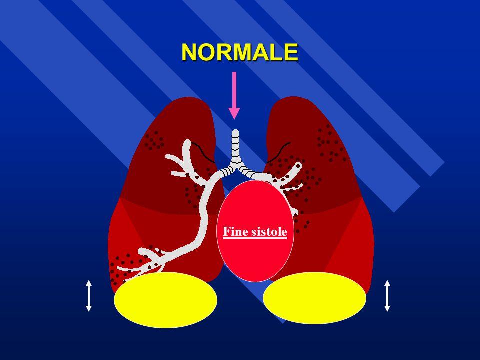 NORMALE Fine sistole