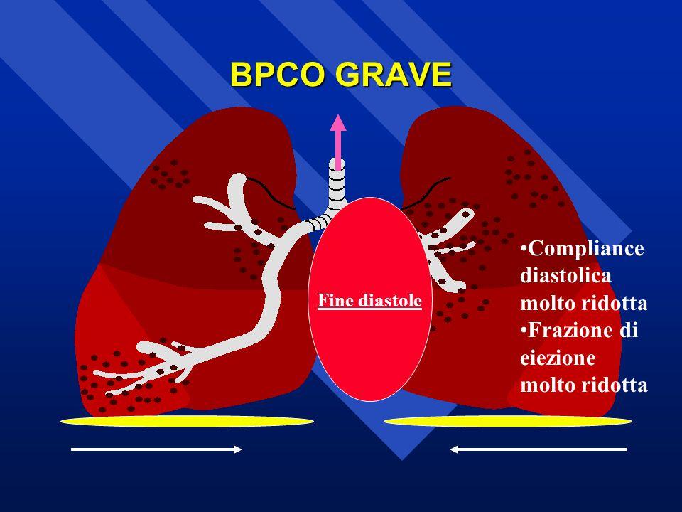 BPCO GRAVE Compliance diastolica molto ridotta