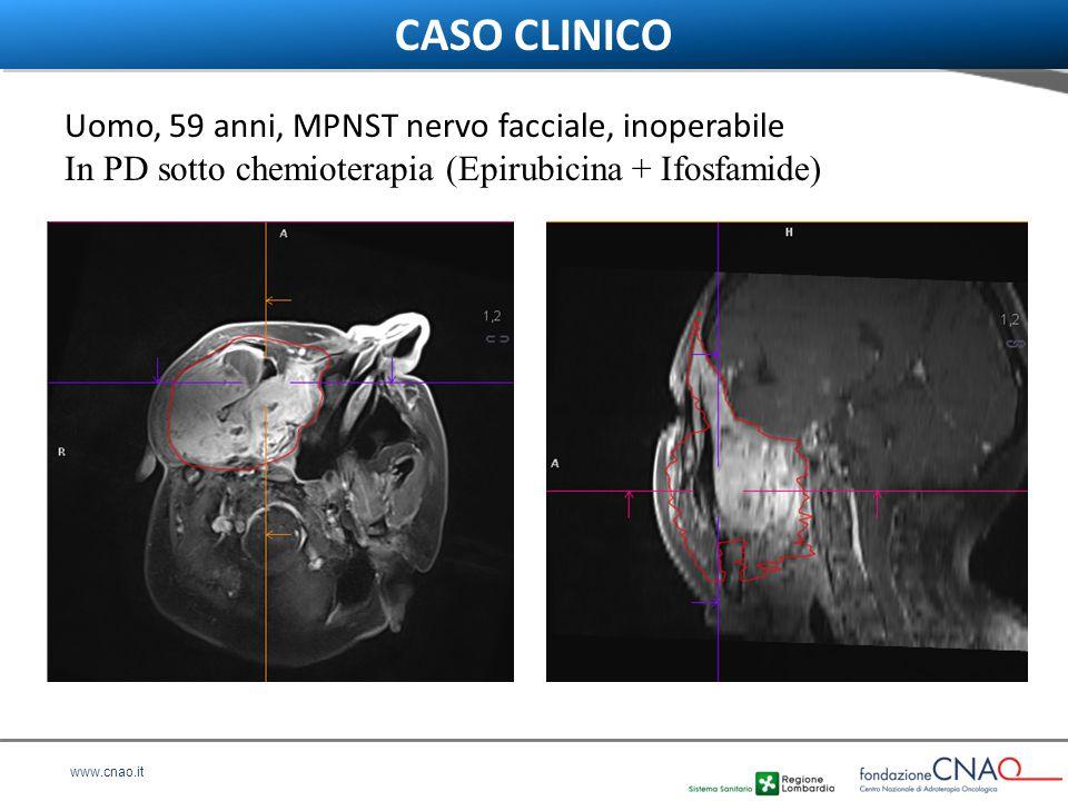 CASO CLINICO Uomo, 59 anni, MPNST nervo facciale, inoperabile