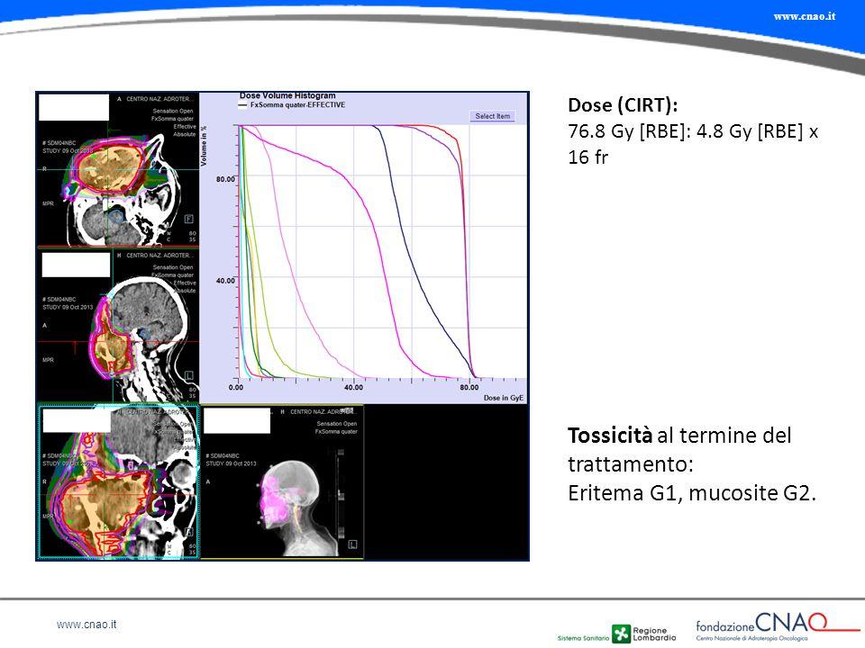 Tossicità al termine del trattamento: Eritema G1, mucosite G2.