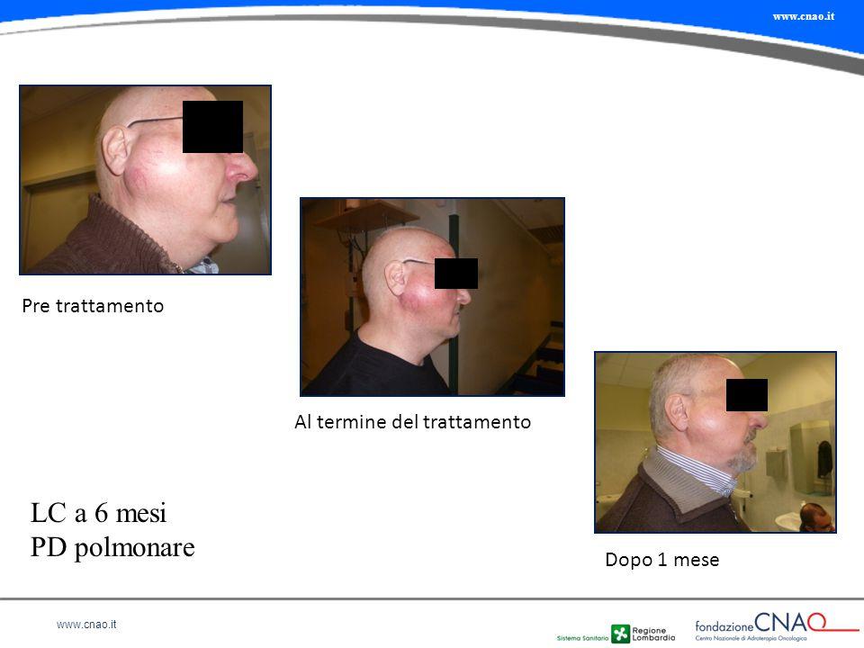 LC a 6 mesi PD polmonare Pre trattamento Al termine del trattamento
