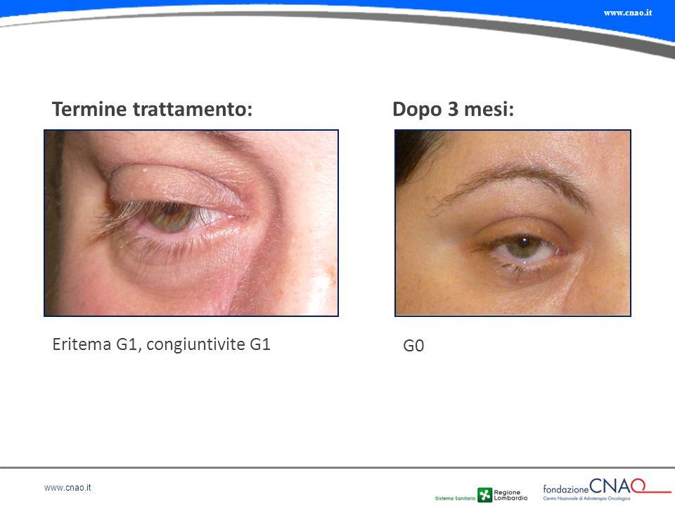 Termine trattamento: Dopo 3 mesi: Eritema G1, congiuntivite G1 G0