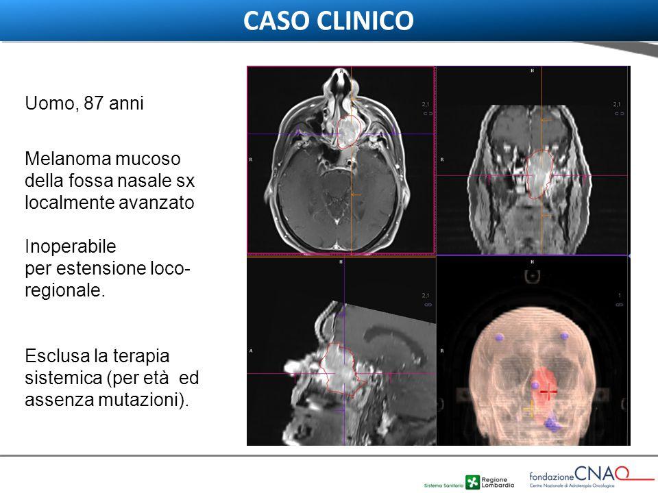 CASO CLINICO Uomo, 87 anni. Melanoma mucoso della fossa nasale sx localmente avanzato. Inoperabile.