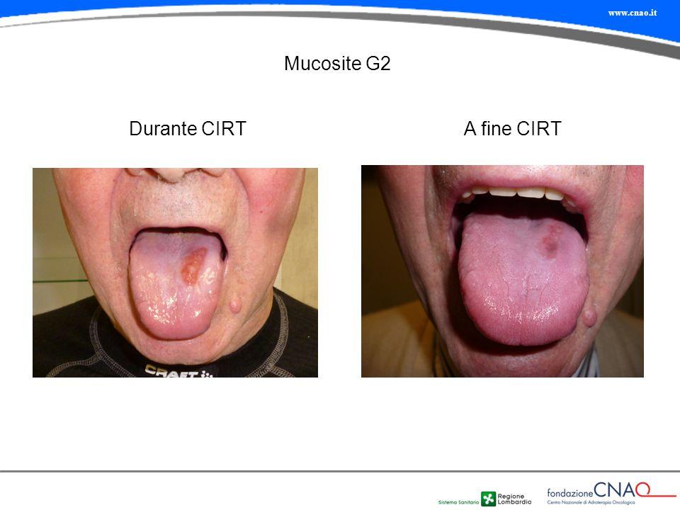 Mucosite G2 Durante CIRT A fine CIRT