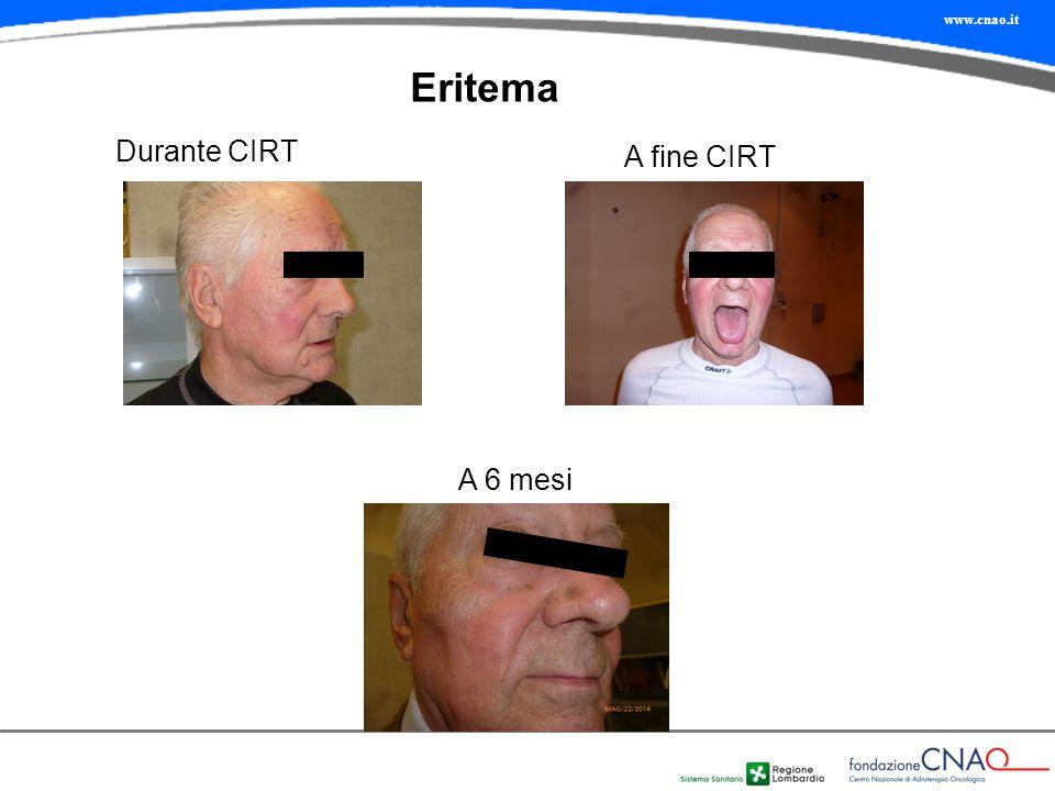 Eritema Durante CIRT A fine CIRT A 6 mesi