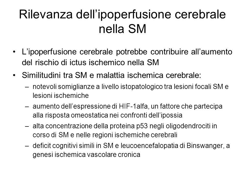 Rilevanza dell'ipoperfusione cerebrale nella SM
