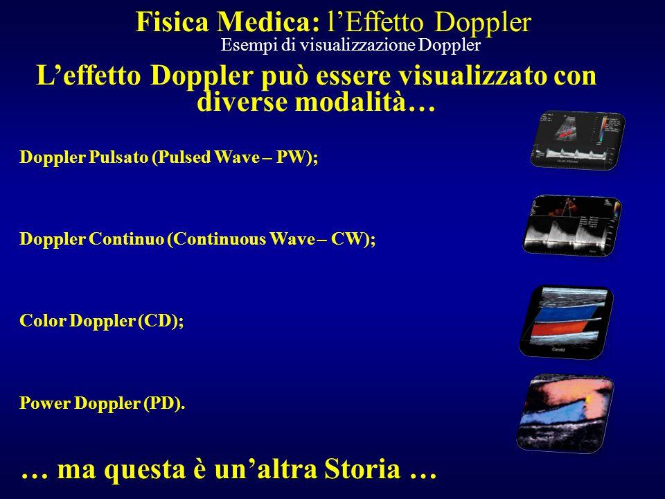 L'effetto Doppler può essere visualizzato con diverse modalità…
