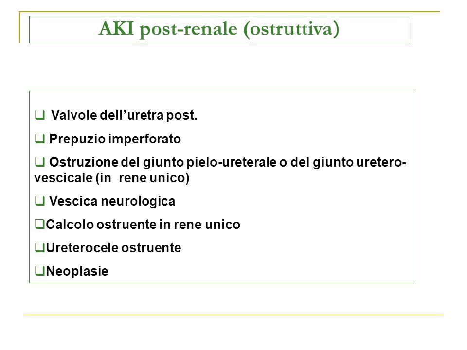 AKI post-renale (ostruttiva)