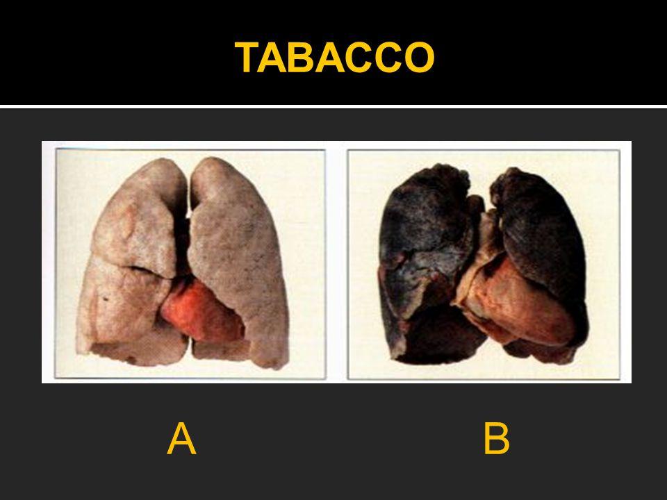 A B TABACCO Quiz per i ragazzi: qual è il polmone del'ex fumatore