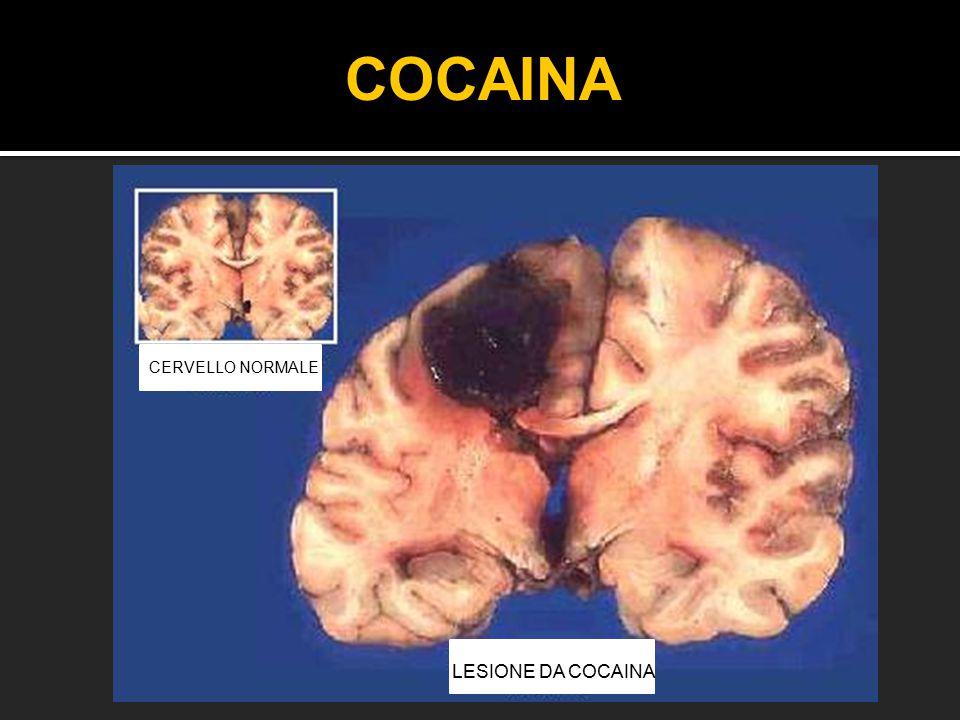 COCAINA CERVELLO NORMALE LESIONE DA COCAINA