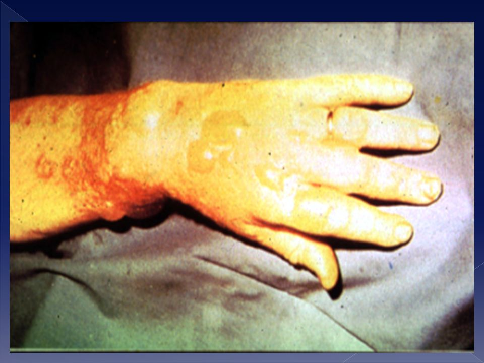 Questa è la situazione dopo 24 ore dalla contaminazione daazotoiprite