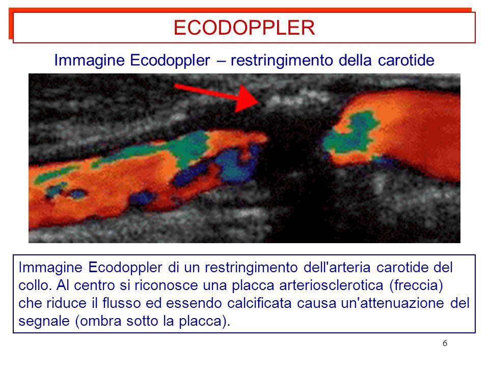 Immagine Ecodoppler – restringimento della carotide