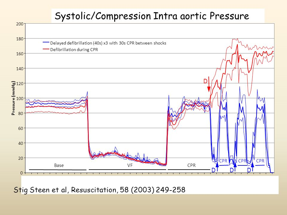 Systolic/Compression Intra aortic Pressure