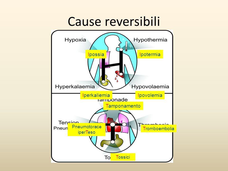 Cause reversibili Ipossia Ipotermia Iperkaliemia Ipovolemia