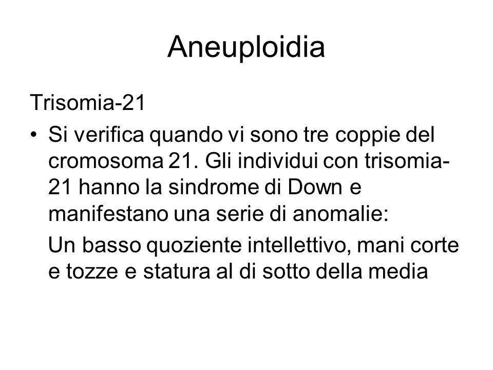Aneuploidia Trisomia-21