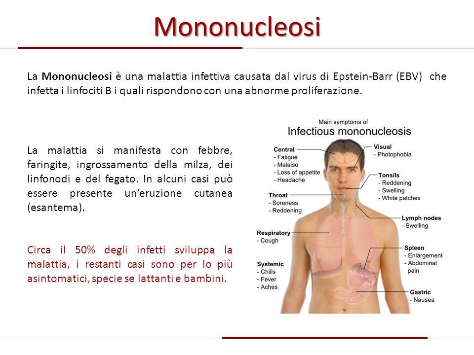 Mononucleosi