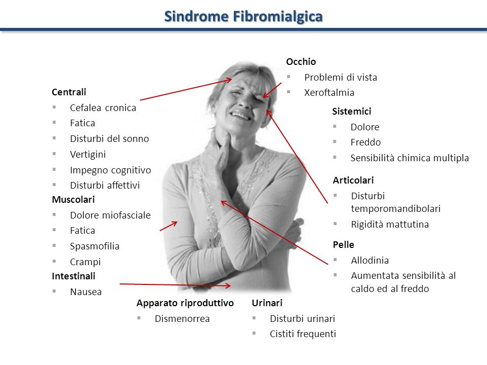 Sindrome Fibromialgica