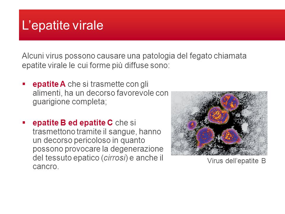 L'epatite virale Alcuni virus possono causare una patologia del fegato chiamata epatite virale le cui forme più diffuse sono: