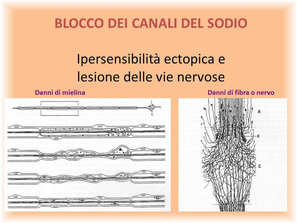 BLOCCO DEI CANALI DEL SODIO Ipersensibilità ectopica e lesione delle vie nervose