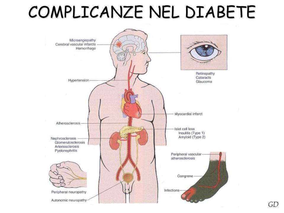 COMPLICANZE NEL DIABETE
