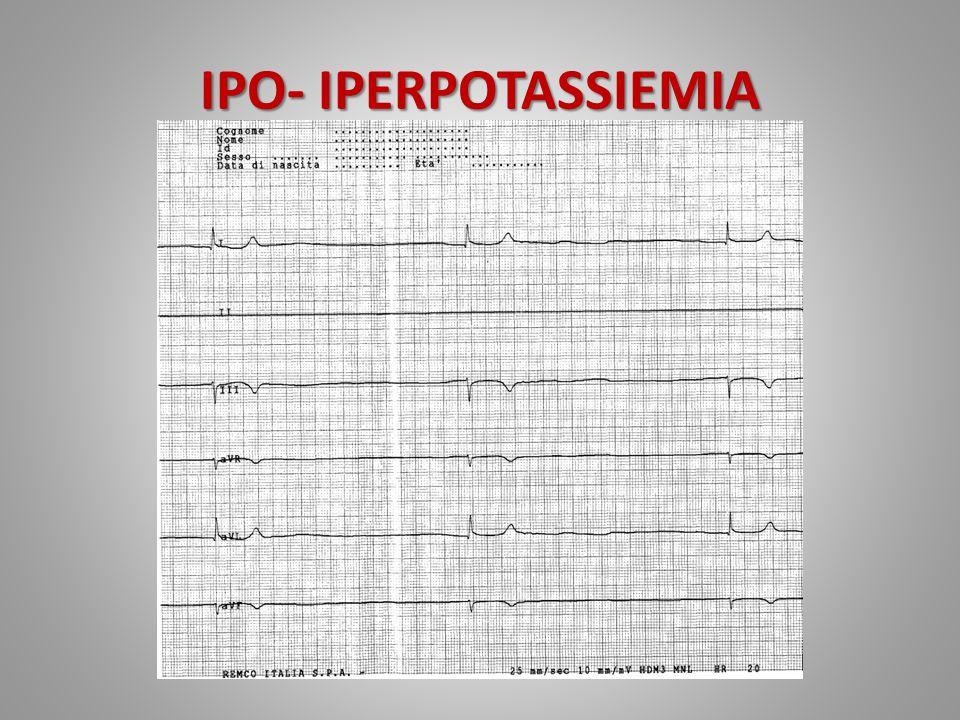 IPO- IPERPOTASSIEMIA