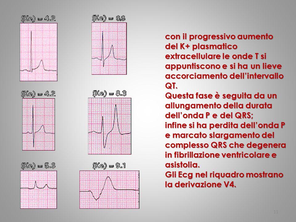 con il progressivo aumento del K+ plasmatico extracellulare le onde T si appuntiscono e si ha un lieve accorciamento dell'intervallo QT.