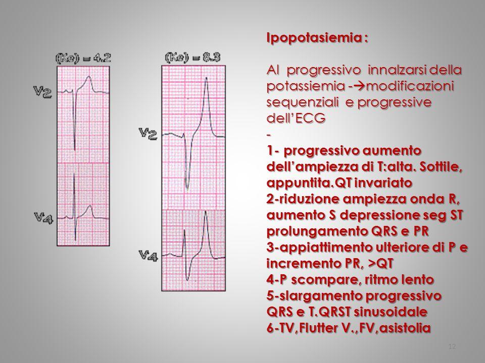 Ipopotasiemia : Al progressivo innalzarsi della potassiemia -modificazioni sequenziali e progressive dell'ECG.