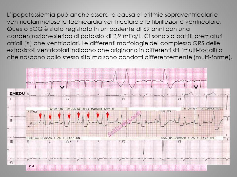 L'ipopotassiemia può anche essere la causa di aritmie sopraventricolari e ventricolari incluse la tachicardia ventricolare e la fibrillazione ventricolare.