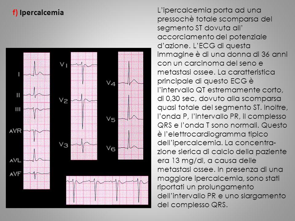 f) Ipercalcemia